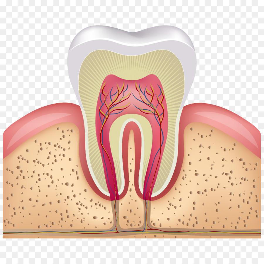 Humanos de la Pulpa de los dientes canal de la Raíz de la caries ...