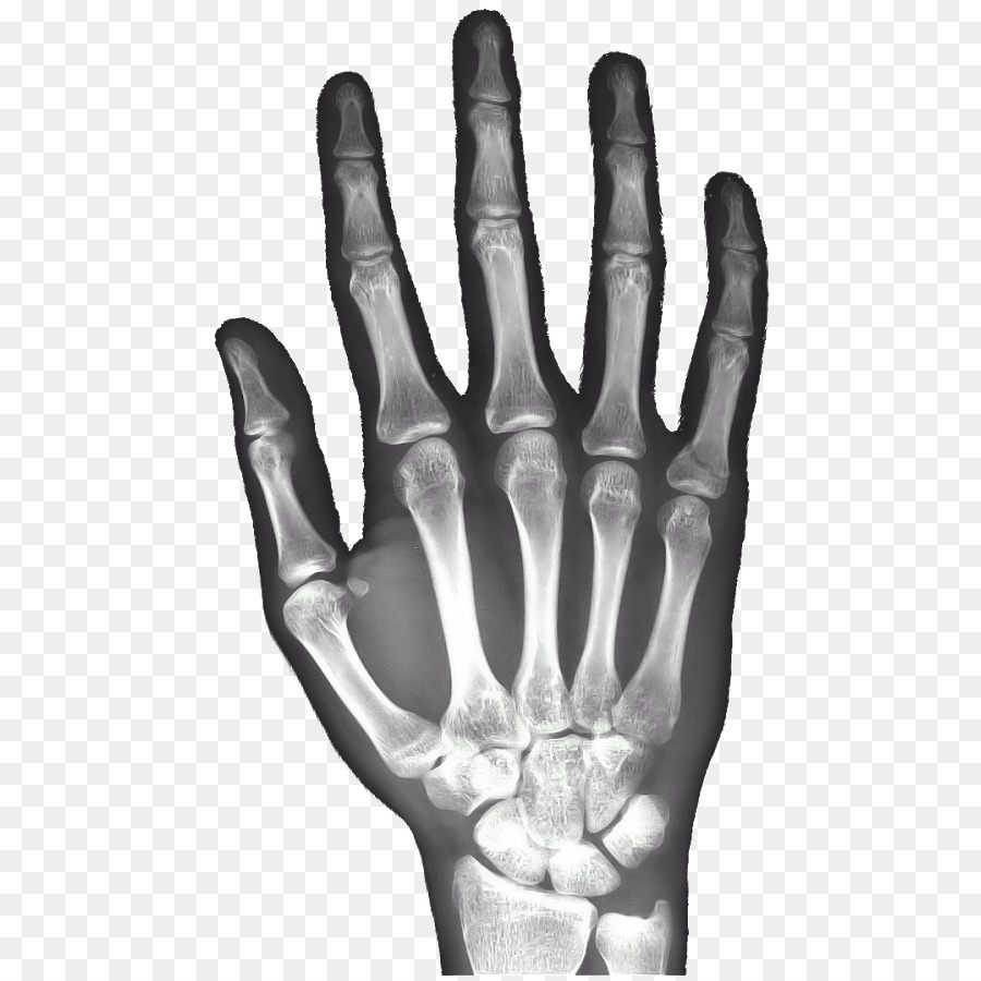 X Ray Hand Carpal Bones Android Rays Png Download 523900 Free