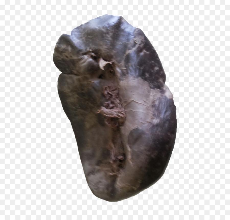 Bazo de la arteria Esplénica cuerpo Humano Anatomía de un Cadáver ...