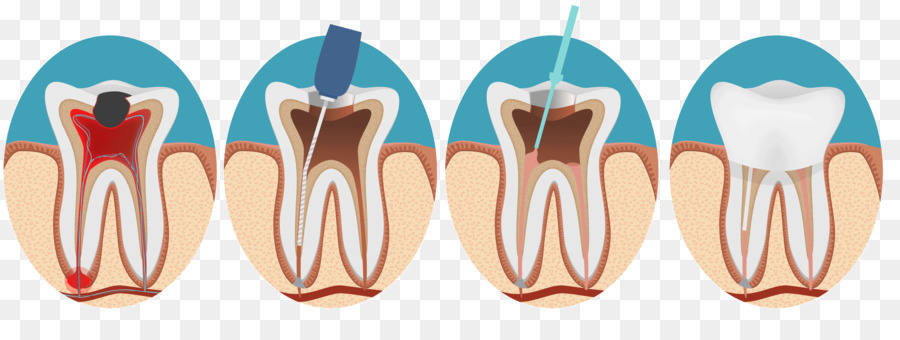 endodontic therapy root canal endodontics dentistry dentistry