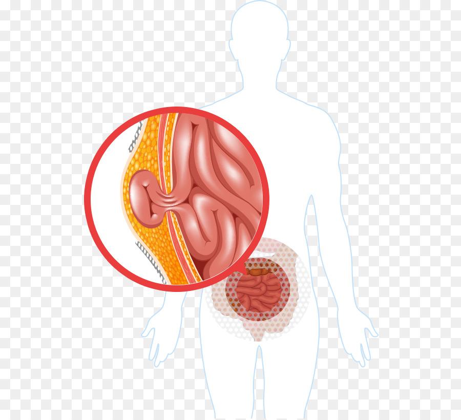 Hernia repair Surgery Inguinal hernia Umbilical hernia - mesh ...