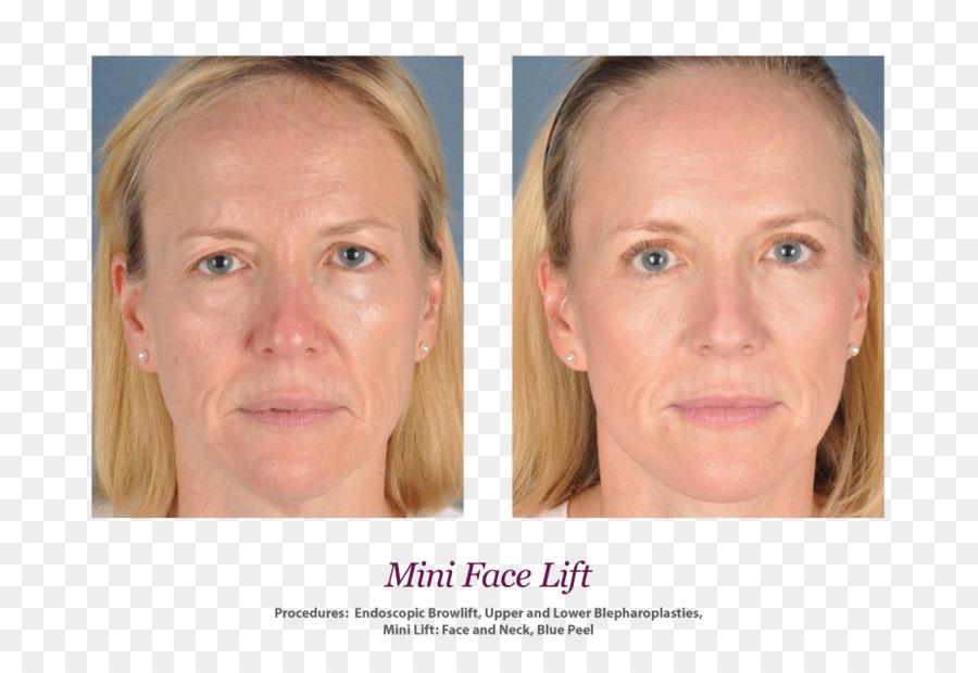 skin face rhytidectomy wrinkle surgery mini facelift