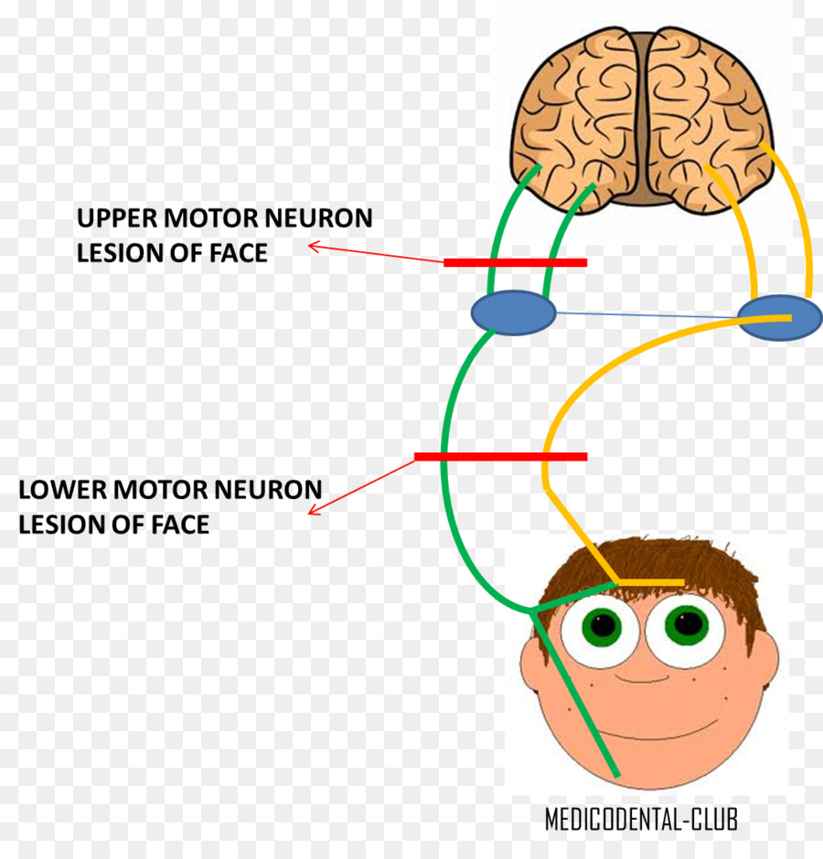 Lower Motor Neuron Lesion Facial Nerve Upper Motor Neuron Lesion