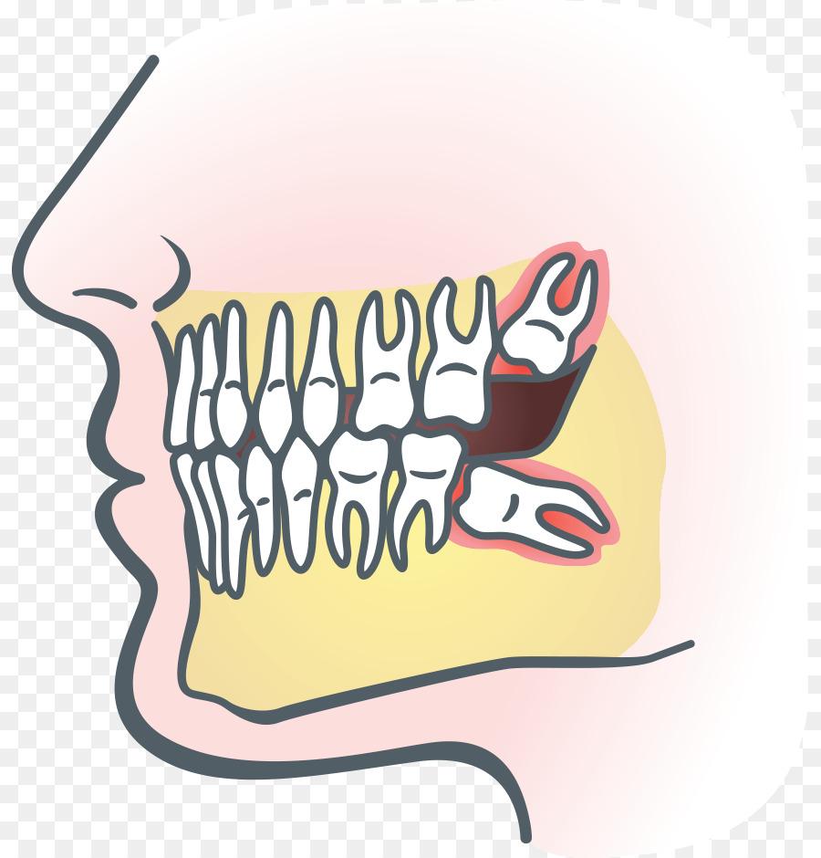 La sabiduría Dentales extracción de las muelas del juicio Impactadas ...