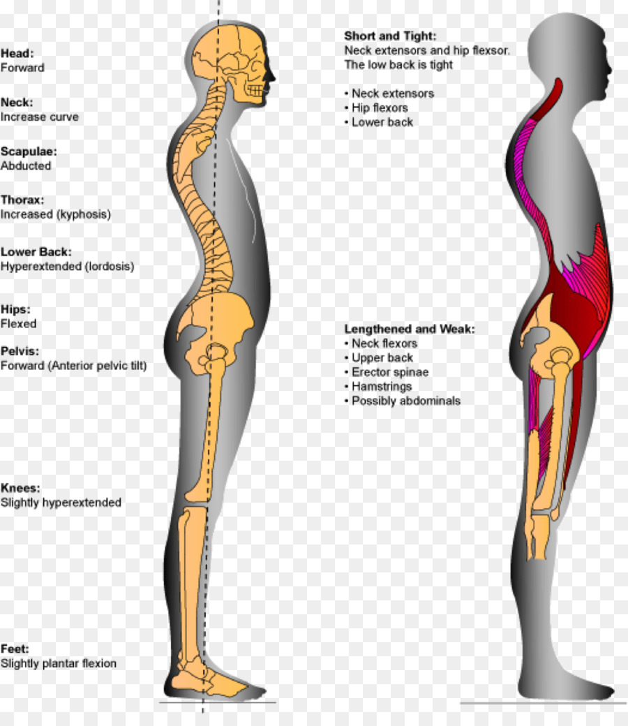 Lordosis Human back Low back pain Hypermobility - girdle png ...