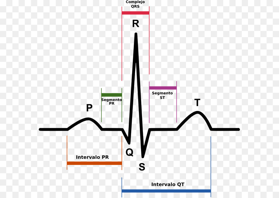 electrocardiography, qrs complex, sinus rhythm, plot, angle png
