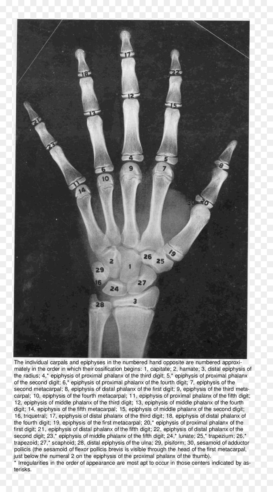 Finger Bone Hand Radiography Anatomy - hand png download - 1496*2676 ...