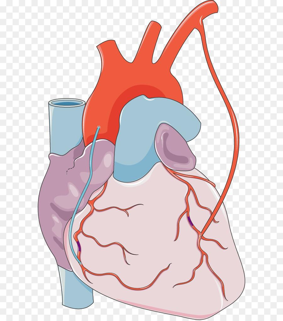 Infarto de miocardio del Corazón enfermedad de la arteria Coronaria ...