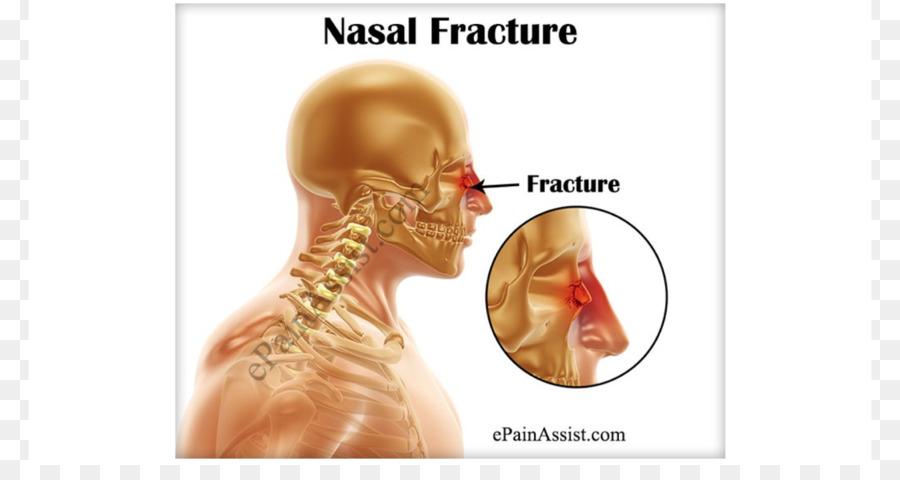 Nasal fracture Nose Nasal bone Bone fracture Surgery - headache png ...
