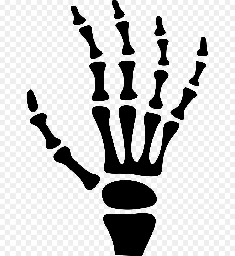 Los huesos del carpo esqueleto Humano de la Mano - de la mano png ...
