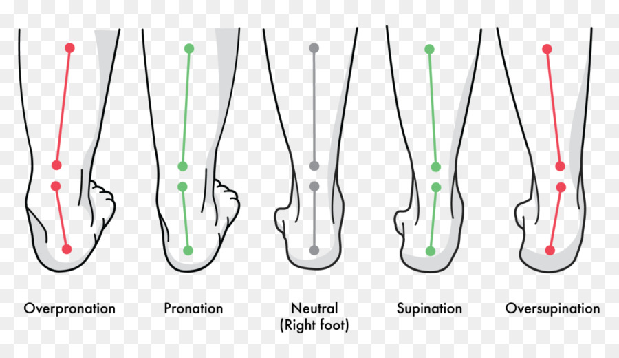 Pronation of the foot Supination Gait Achilles tendinitis - others ...