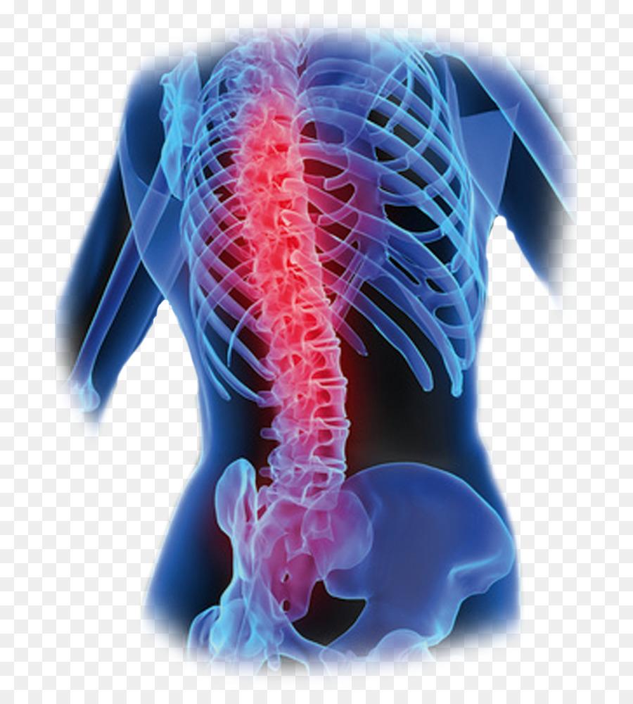 El dolor de espalda baja de la columna Vertebral, el Hueso Humano de ...