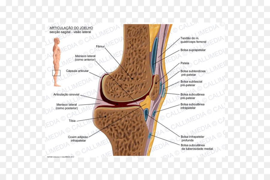 Knee Prepatellar bursitis Infrapatellar bursitis Synovial bursa ...