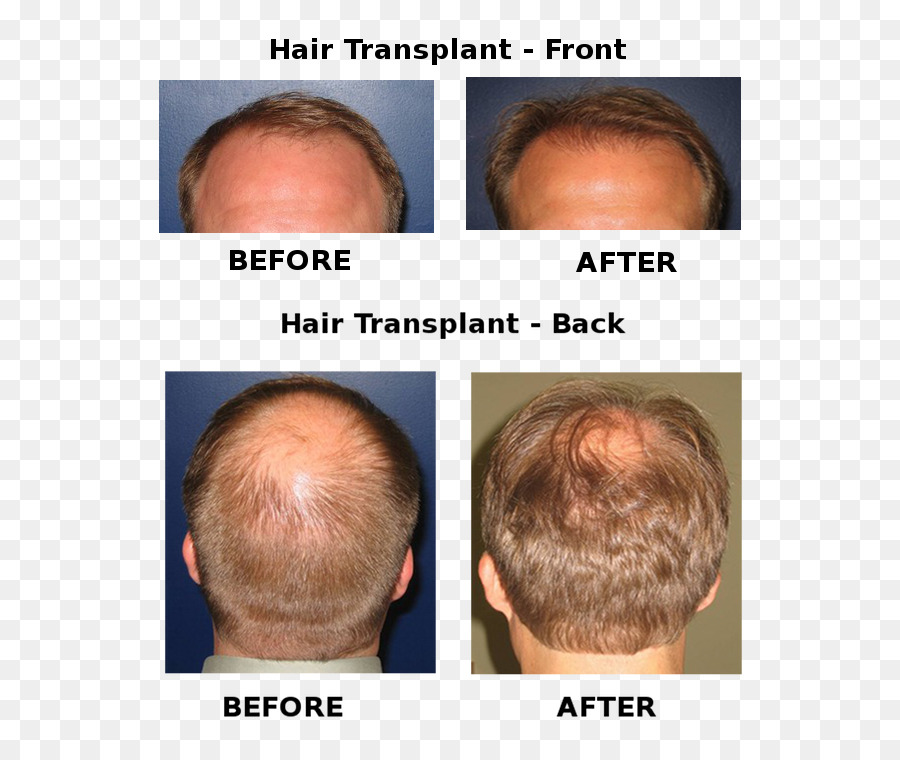 Forehead Eyebrow Hair Coloring Chin Cheek Hair Loss Png Download