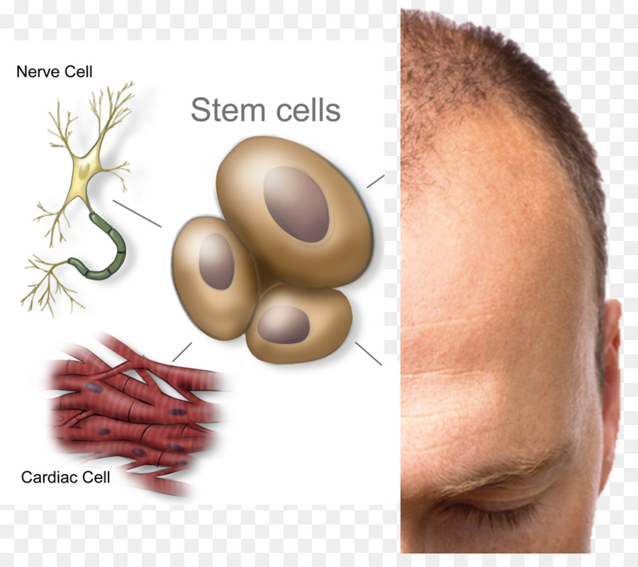 Stem Cell Stem Cell Therapy Disease Cord Blood Bank Hair Loss Png
