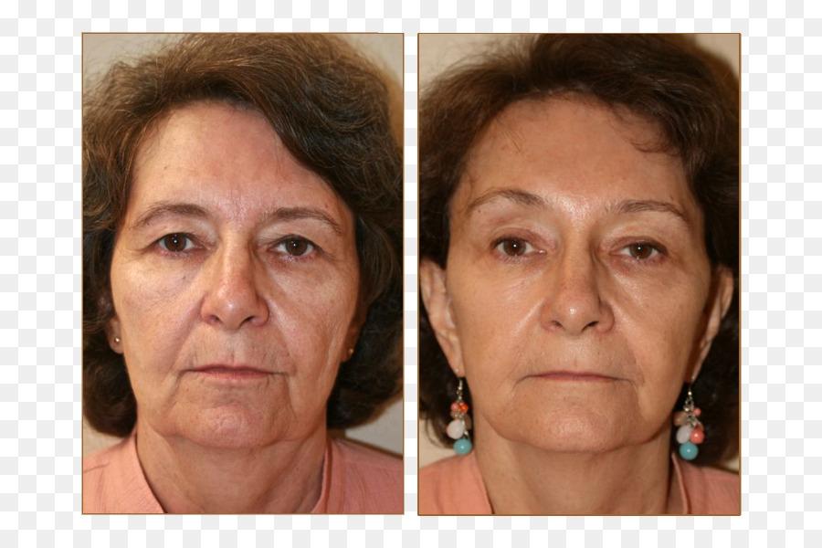 rhytidectomy cheek lifestyle lift eyebrow forehead face lift