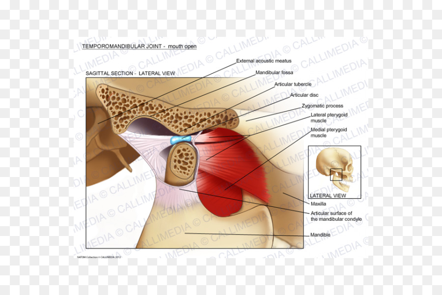 Temporomandibular joint dysfunction Anatomy Mandible - skull png ...