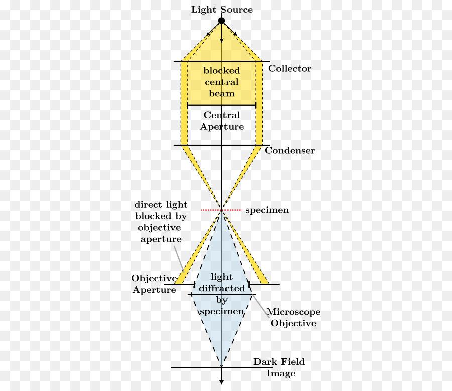 Light dark field microscopy bright field microscopy optical light dark field microscopy bright field microscopy optical microscope optical microscope ccuart Images