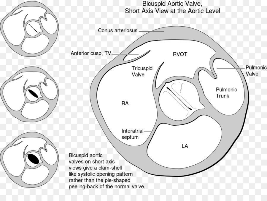 Bicuspid aortic valve heart valve tricuspid valve heart png bicuspid aortic valve heart valve tricuspid valve heart ccuart Gallery