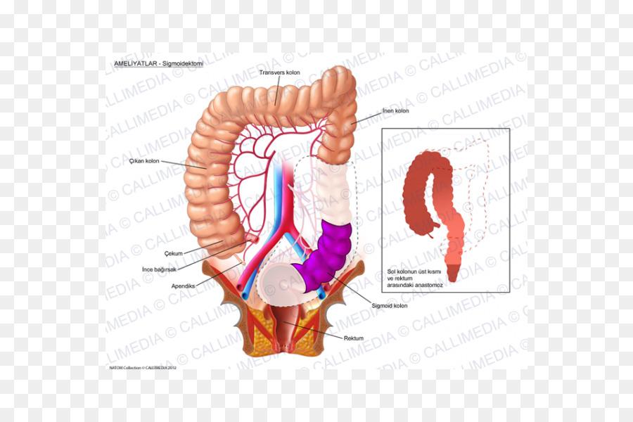 Colorectal cancer Surgery Colon - Sigmoid Colon png download - 600 ...