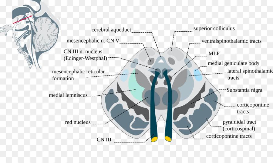 Del tronco cerebral en la Sustancia nigra del Mesencéfalo en la ...