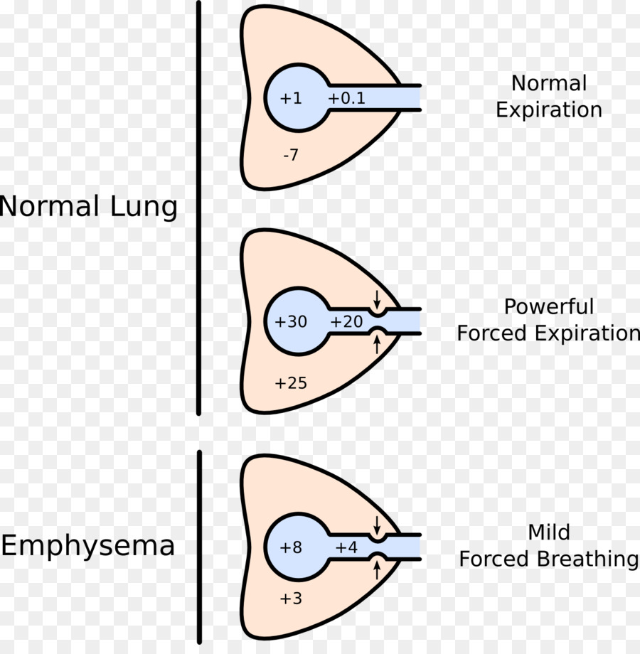 Dynamic compression of the airways lung pulmonary compliance pursed dynamic compression of the airways lung pulmonary compliance pursed lip breathing others ccuart Image collections