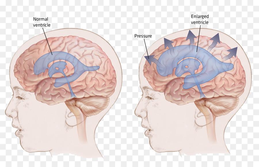 Ventricular system Normal pressure hydrocephalus Shunt Brain - Brain ...