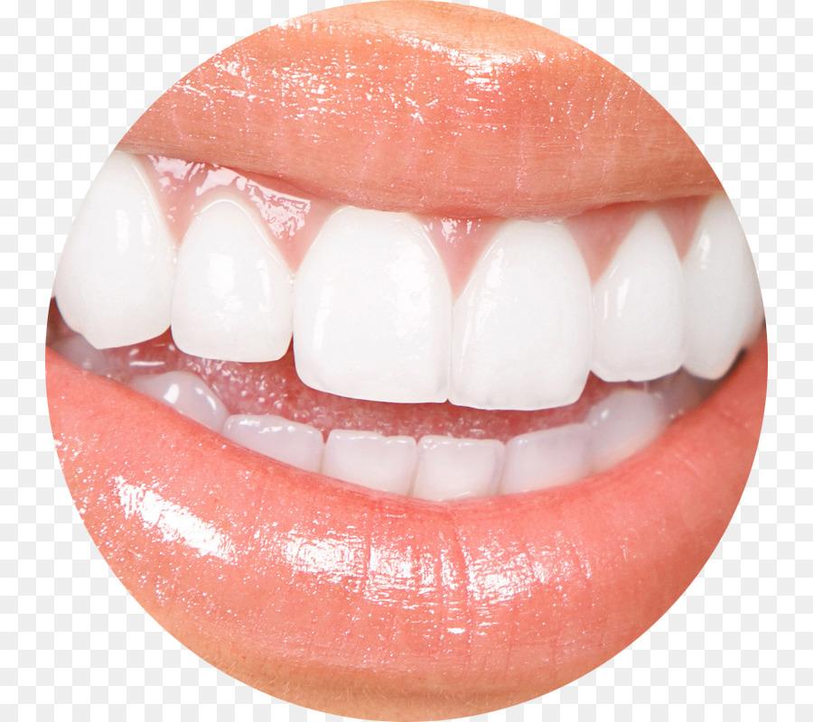 Folheado A Estetica Dentaria Clareamento Dental Dente Cirurgia