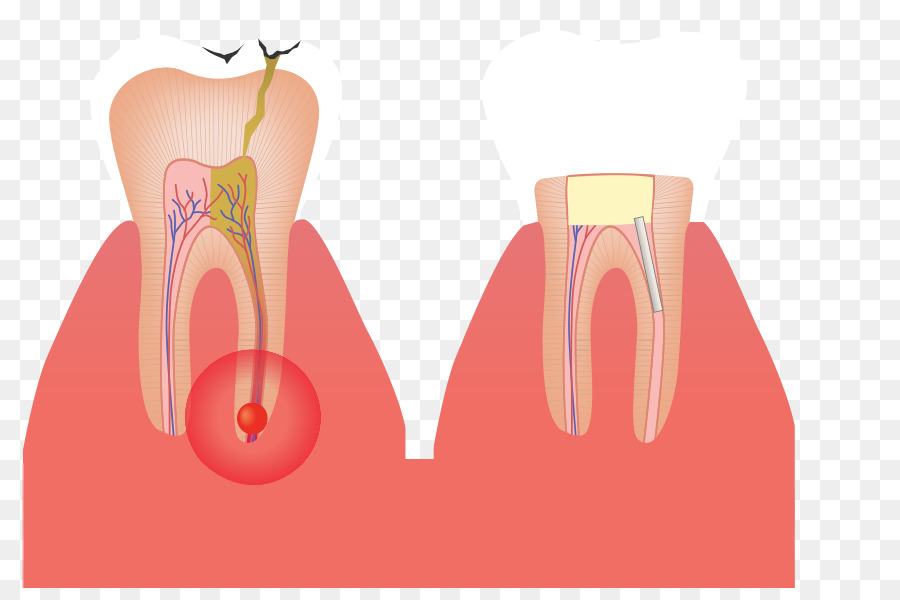 Shoulder Tooth Root canal Gross anatomy - root canal png download ...