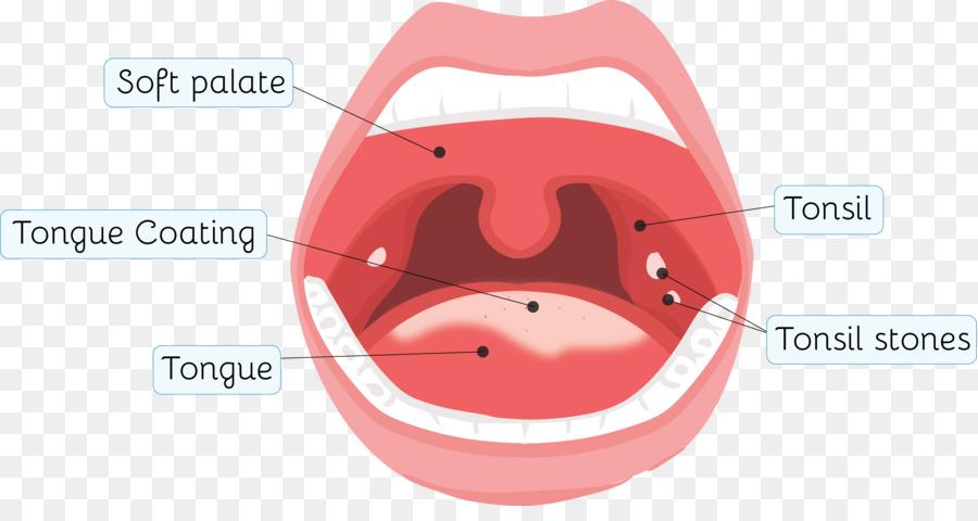 Tonsillolith Amigdalitis De La Garganta De La Salud - dolor de ...