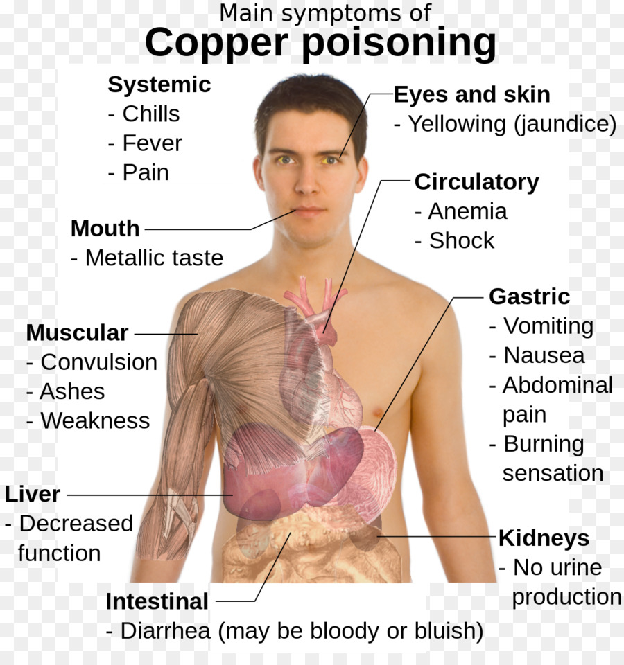 Copper toxicity Poison Disease Symptom - Iron Deficiency Anemia png ...