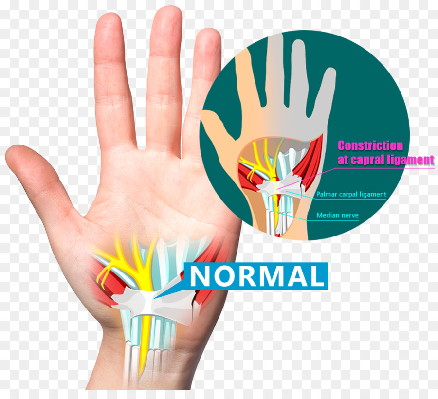 Wrist Pain Carpal Bones Carpal Tunnel Syndrome Ligament Hand Png