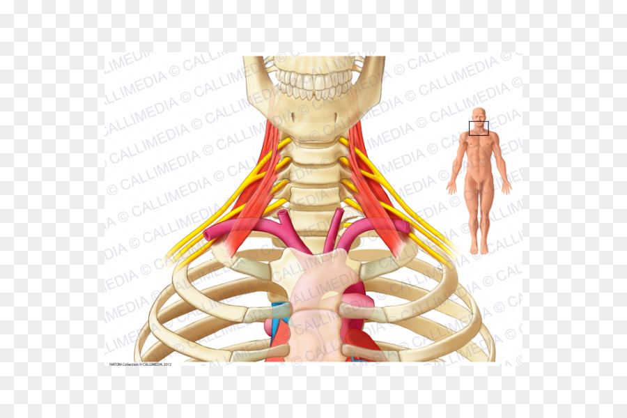 Nervio cervicobrachial neuralgia músculos Escalenos Anatomía del ...
