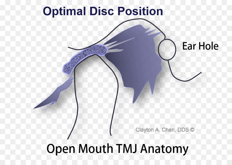 Temporomandibular joint dysfunction Anatomy Mandible - skull png ...