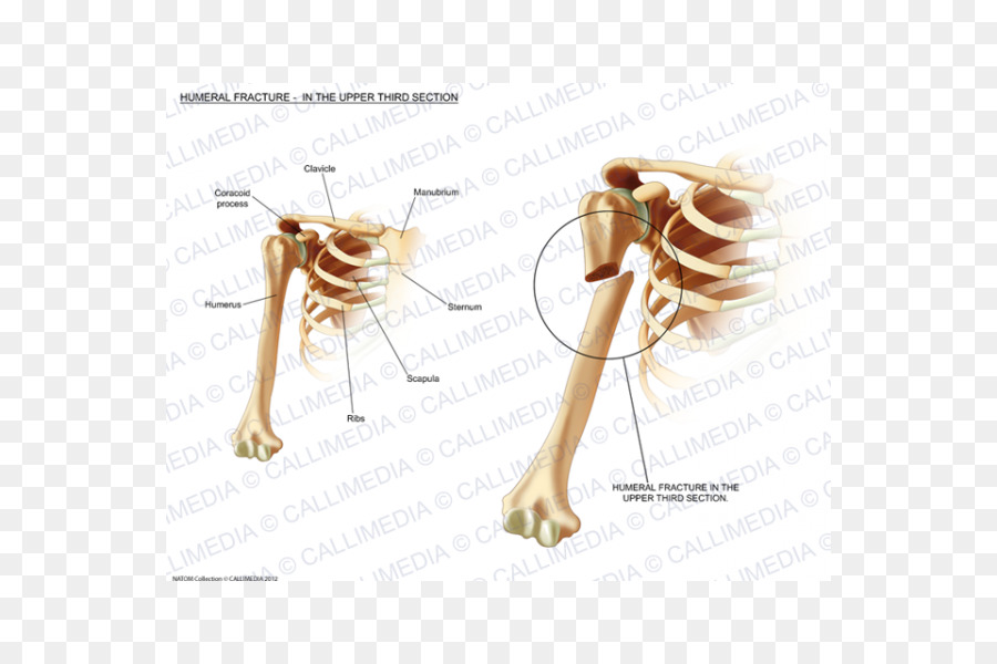 Humerus fracture Bone fracture Injury Sternum - humerus png download ...