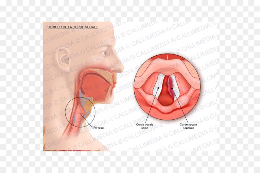 Vocal folds Cancer Human anatomy Vowel - CORDE png download - 600 ...