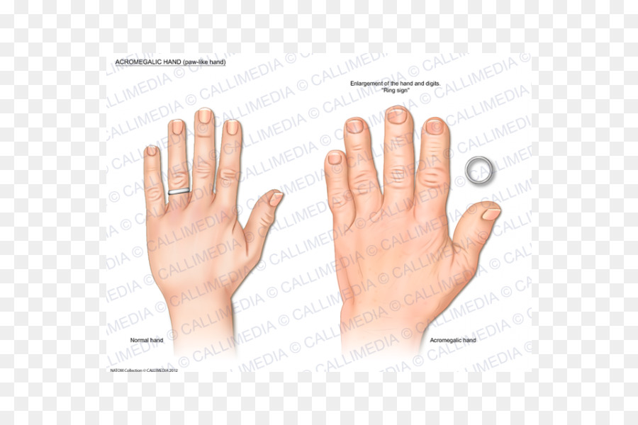 Thumb Acromegaly Hand Endocrinology Growth Hormone Hand Png