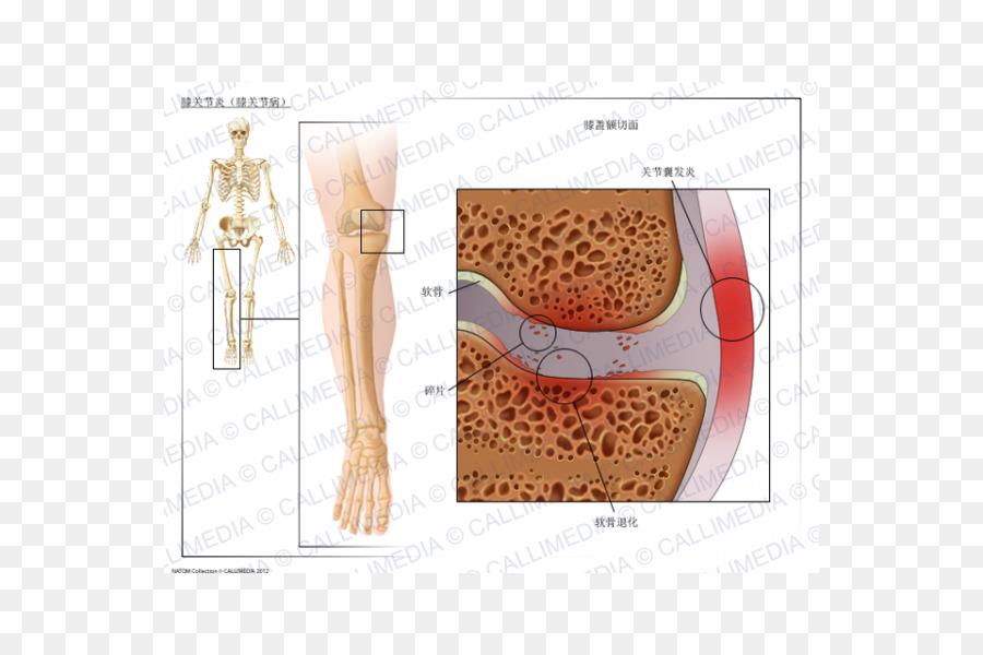 артрозо артрит голеностопного сустава лечение