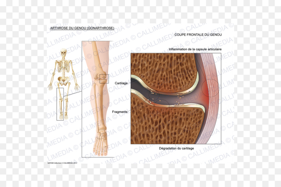 Shoulder Fibular Collateral Ligament Knee Design Png Download