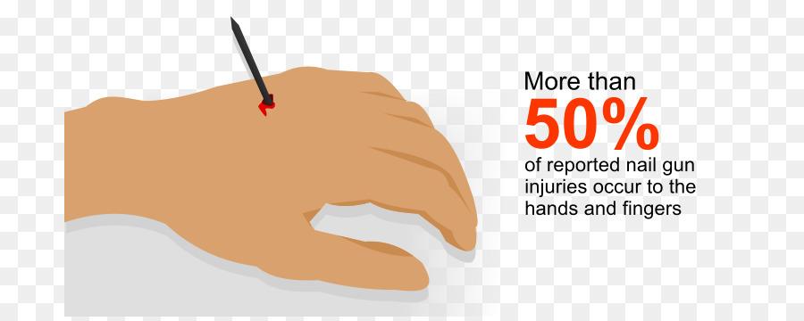 Nail gun Accident Staple gun - nail hand png download - 756*355 ...
