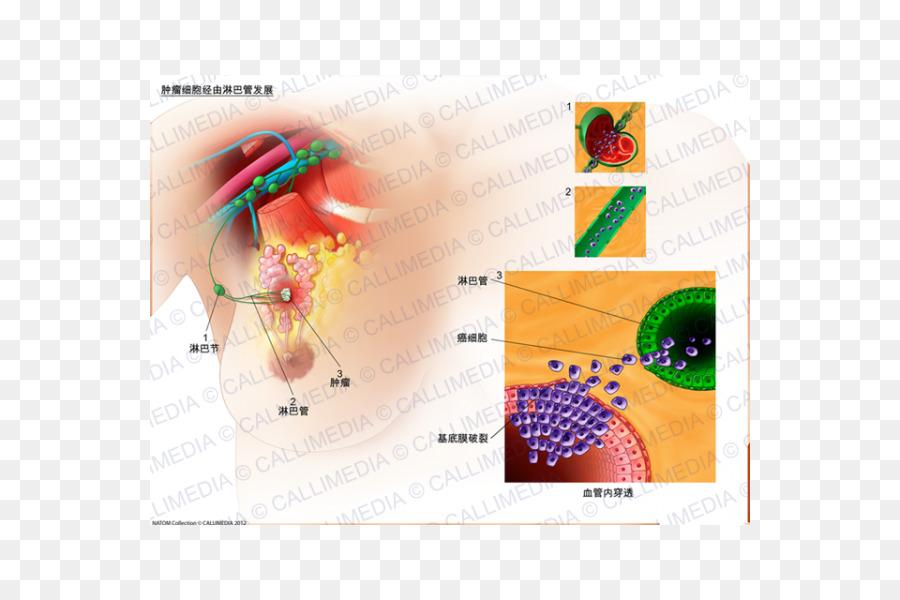 El diseño gráfico del ganglio linfático Centinela - diseño Formatos ...