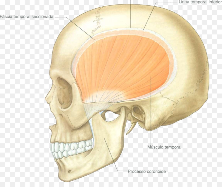 Temporal muscle Temporal bone Infratemporal fossa Anatomy - others ...