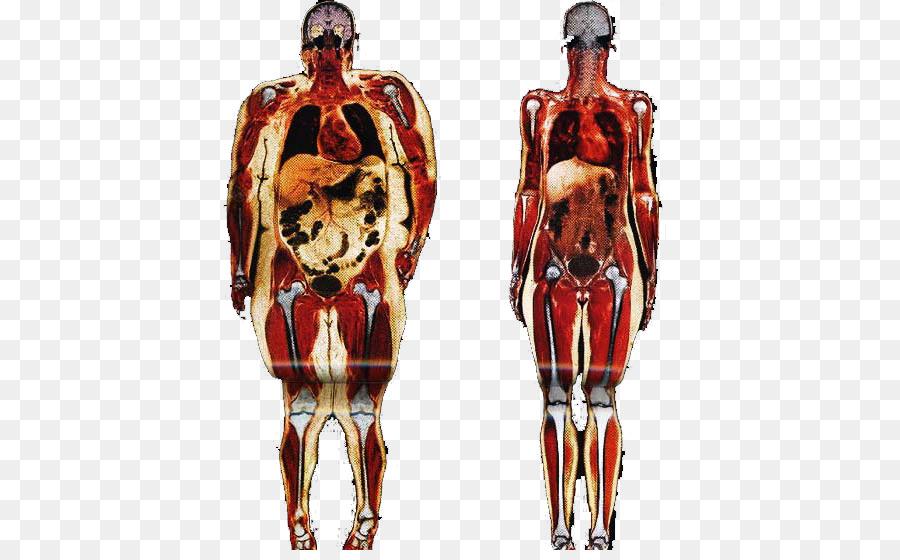 Obesity Human body Adipose tissue Anatomy Connective tissue - health ...