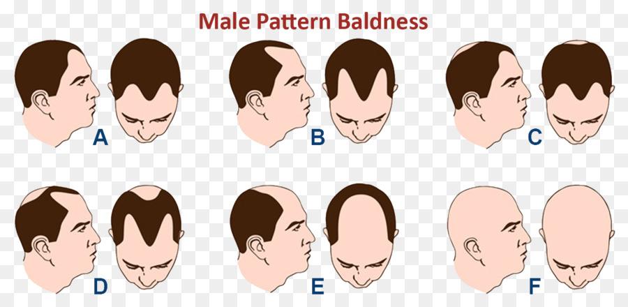 La coloración del cabello de Patrón de pérdida de cabello y vello ...