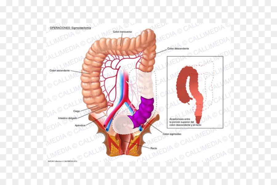 La Cirugía de cáncer colorrectal Colon intestino grueso ...