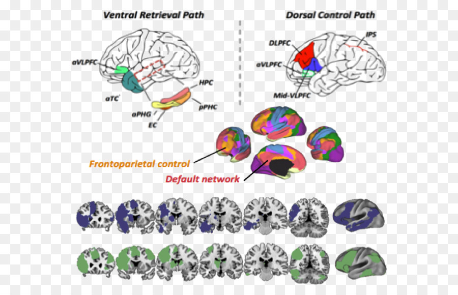 Ventrolateral prefrontal cortex Cognition Functional magnetic ...