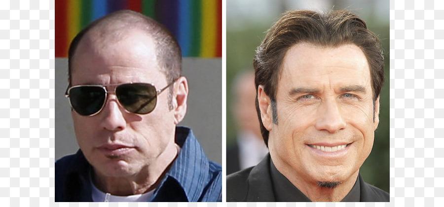 John Travolta John Cleese Hair Transplantation Hair Loss Celebrity