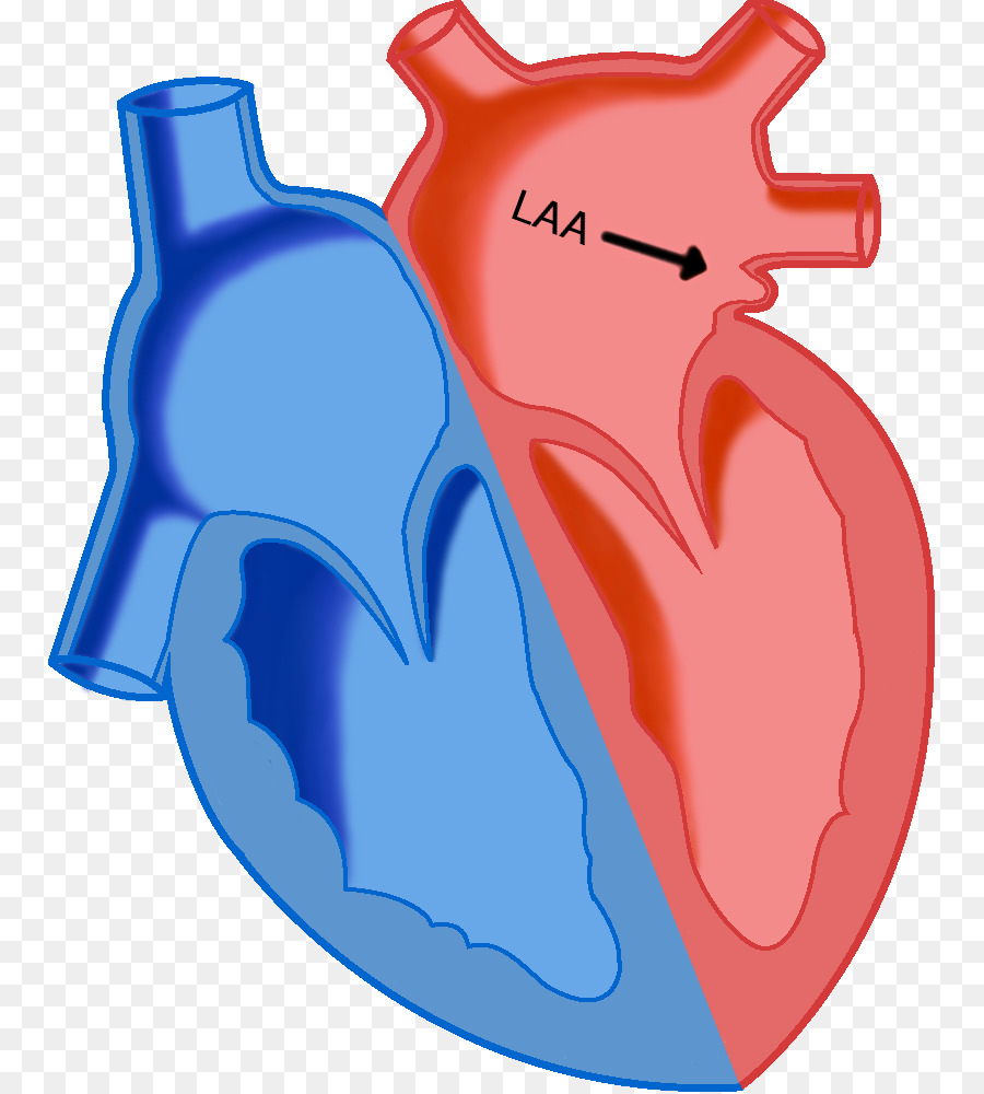 Heart Los Angeles Angels Atrial Septal Defect Atrium Left Atrial