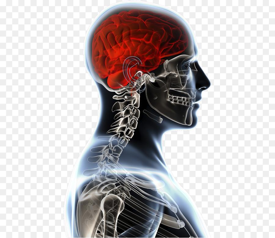 Tumor en el cerebro, la Anatomía de la Anatomia y Fisiologia de la ...