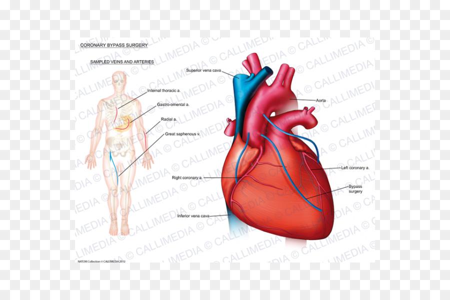 Enfermedad del corazón: Un Libro de texto de Medicina Cardiovascular ...